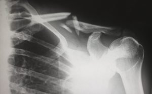 What Types of Injuries are Covered by Workers Compensation